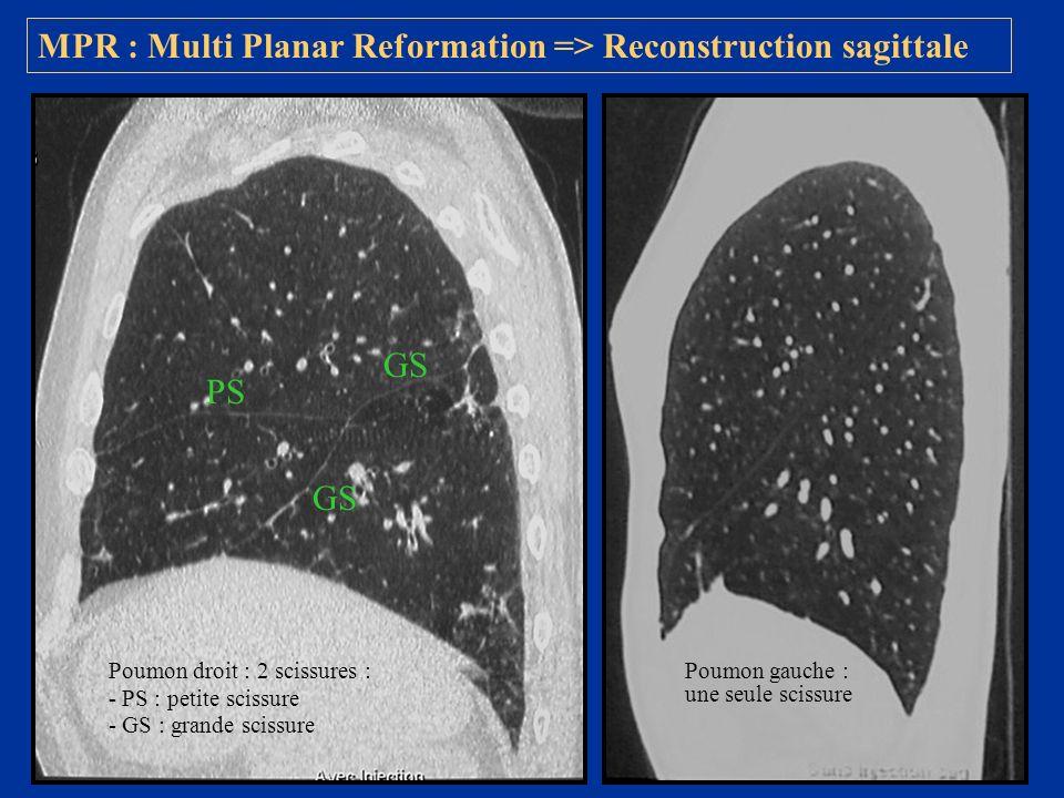 MPR : Multi Planar Reformation => Reconstruction sagittale Poumon droit : 2 scissures : - PS : petite scissure - GS : grande scissure Poumon gauche :