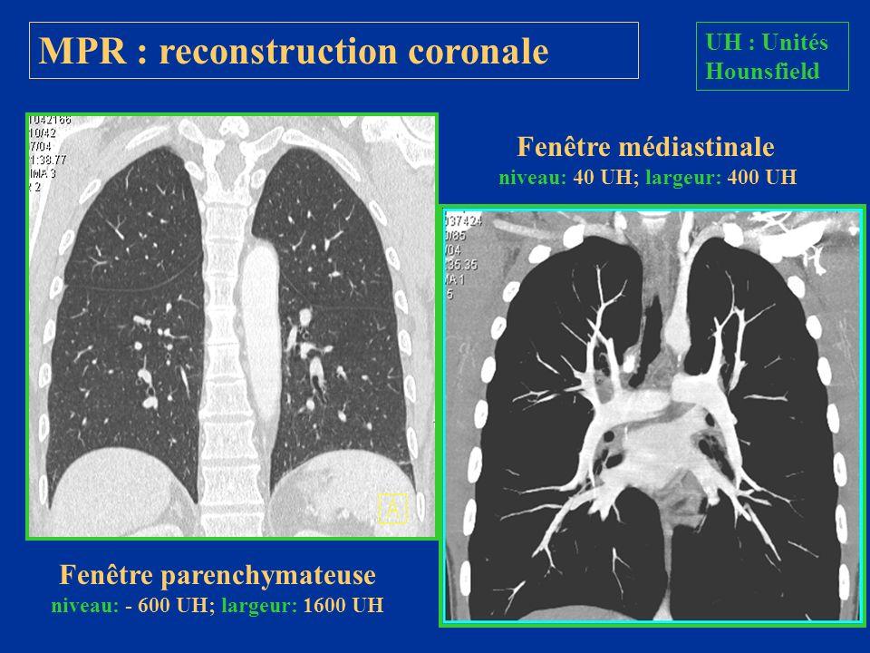 MPR : reconstruction coronale Fenêtre parenchymateuse niveau: - 600 UH; largeur: 1600 UH Fenêtre médiastinale niveau: 40 UH; largeur: 400 UH UH : Unit