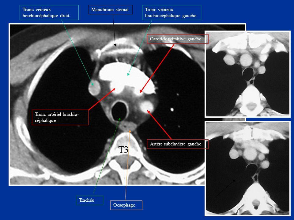 T3 Manubrium sternalTronc veineux brachiocéphalique droit Trachée Oesophage Tronc artériel brachio- céphalique Carotide primitive gauche Artère subcla