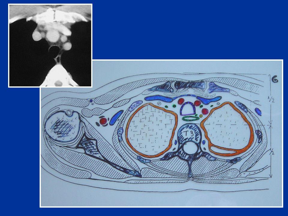 Corps du sternum VCS : Veine cave supérieure Trachée Oesophage Graisse médiastinale Arc aortique Conduit thoracique T4