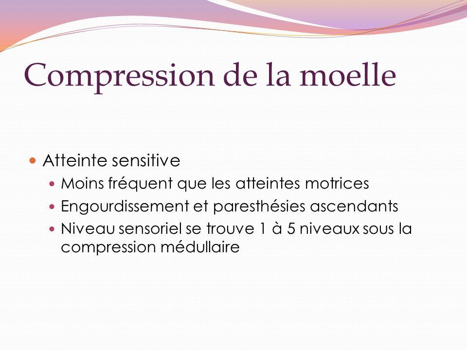Compression de la moelle Atteinte sensitive Moins fréquent que les atteintes motrices Engourdissement et paresthésies ascendants Niveau sensoriel se trouve 1 à 5 niveaux sous la compression médullaire