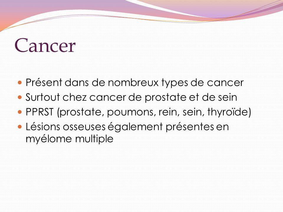 Cancer Présent dans de nombreux types de cancer Surtout chez cancer de prostate et de sein PPRST (prostate, poumons, rein, sein, thyroïde) Lésions osseuses également présentes en myélome multiple