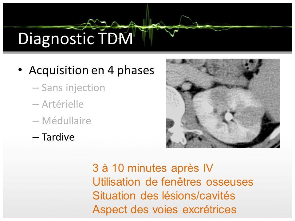 Diagnostic TDM Acquisition en 4 phases – Sans injection – Artérielle – Médullaire – Tardive 3 à 10 minutes après IV Utilisation de fenêtres osseuses S