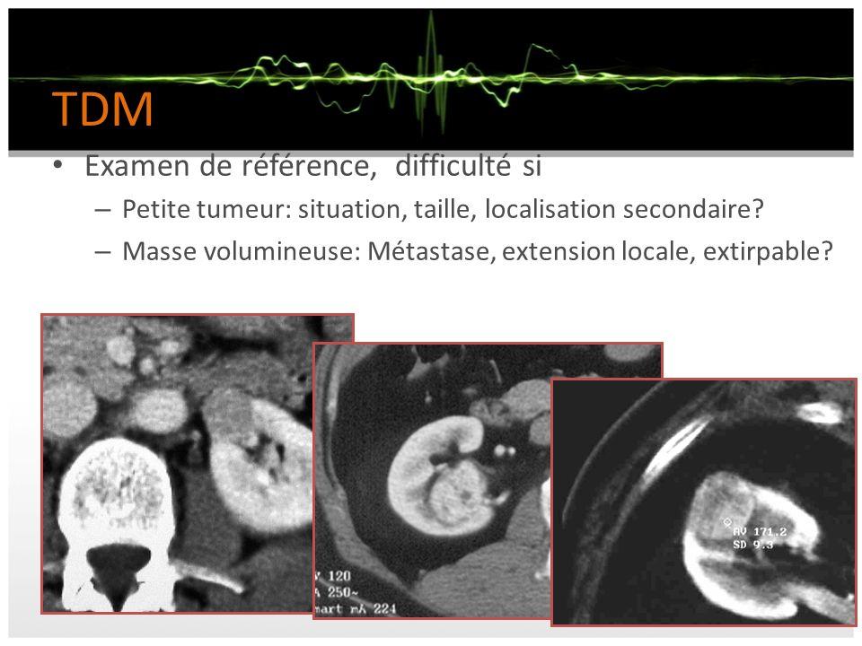 TDM Examen de référence, difficulté si – Petite tumeur: situation, taille, localisation secondaire? – Masse volumineuse: Métastase, extension locale,