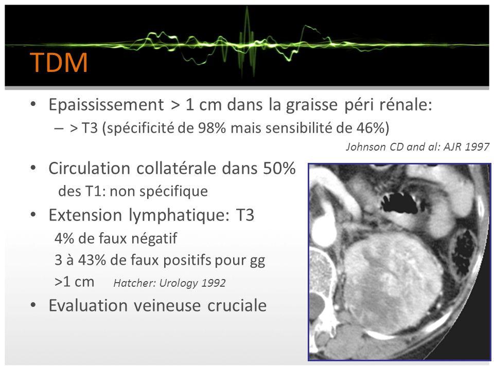 TDM Epaississement > 1 cm dans la graisse péri rénale: – > T3 (spécificité de 98% mais sensibilité de 46%) Johnson CD and al: AJR 1997 Circulation col