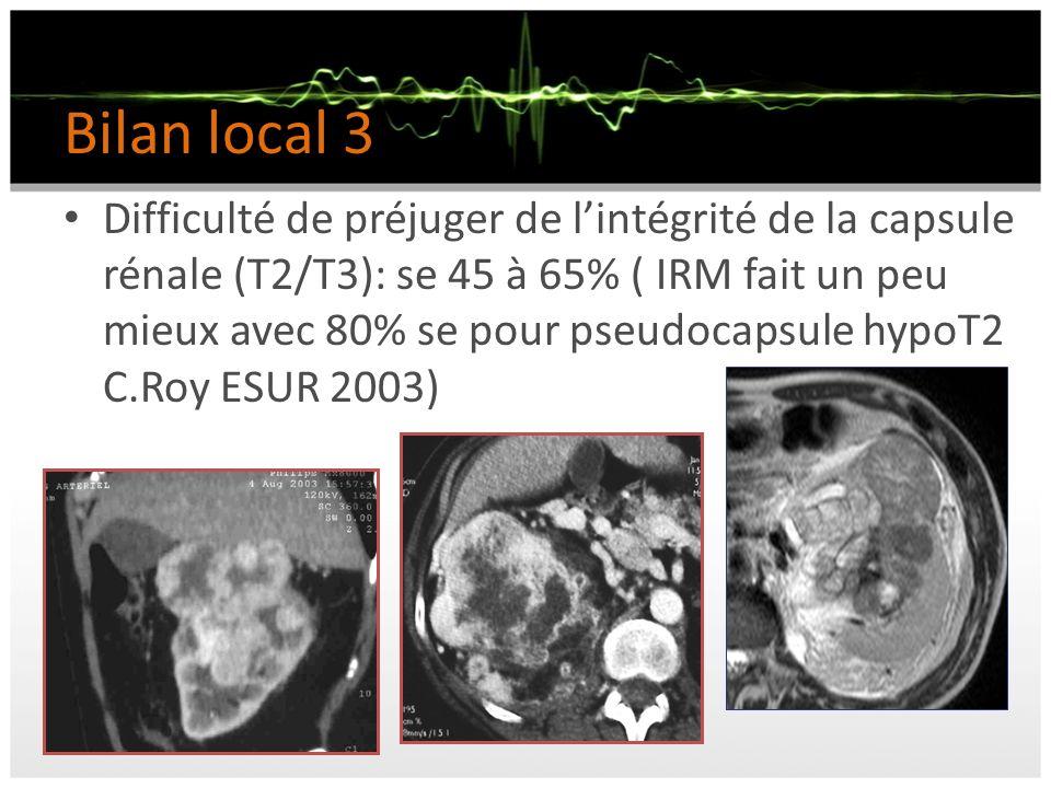 Bilan local 3 Difficulté de préjuger de lintégrité de la capsule rénale (T2/T3): se 45 à 65% ( IRM fait un peu mieux avec 80% se pour pseudocapsule hy