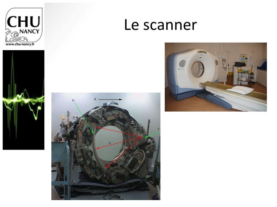 Le scanner