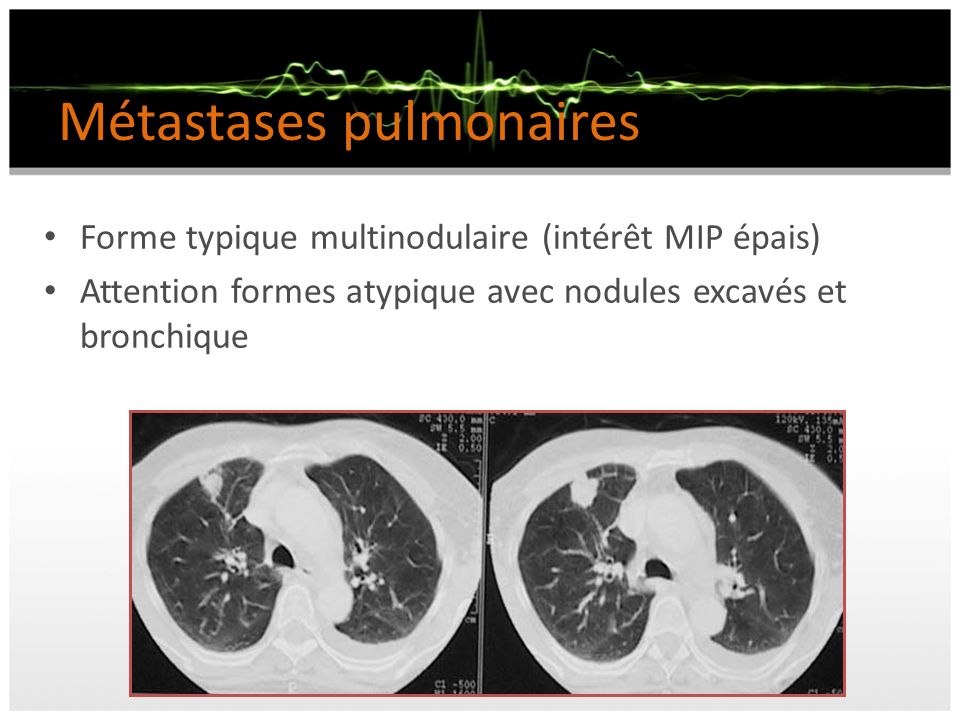 Métastases pulmonaires Forme typique multinodulaire (intérêt MIP épais) Attention formes atypique avec nodules excavés et bronchique