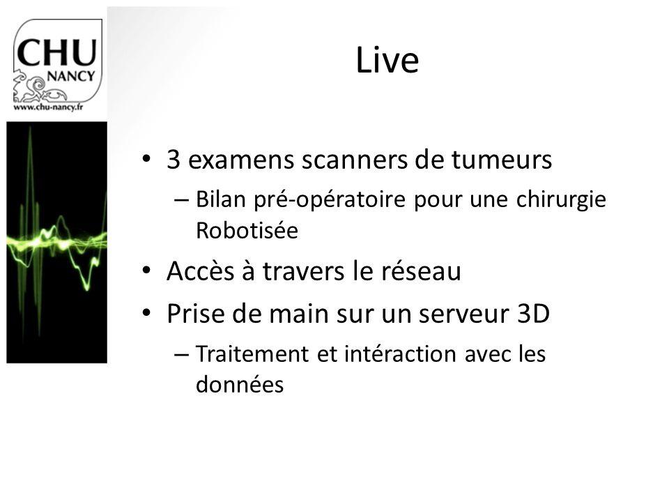 Live 3 examens scanners de tumeurs – Bilan pré-opératoire pour une chirurgie Robotisée Accès à travers le réseau Prise de main sur un serveur 3D – Tra