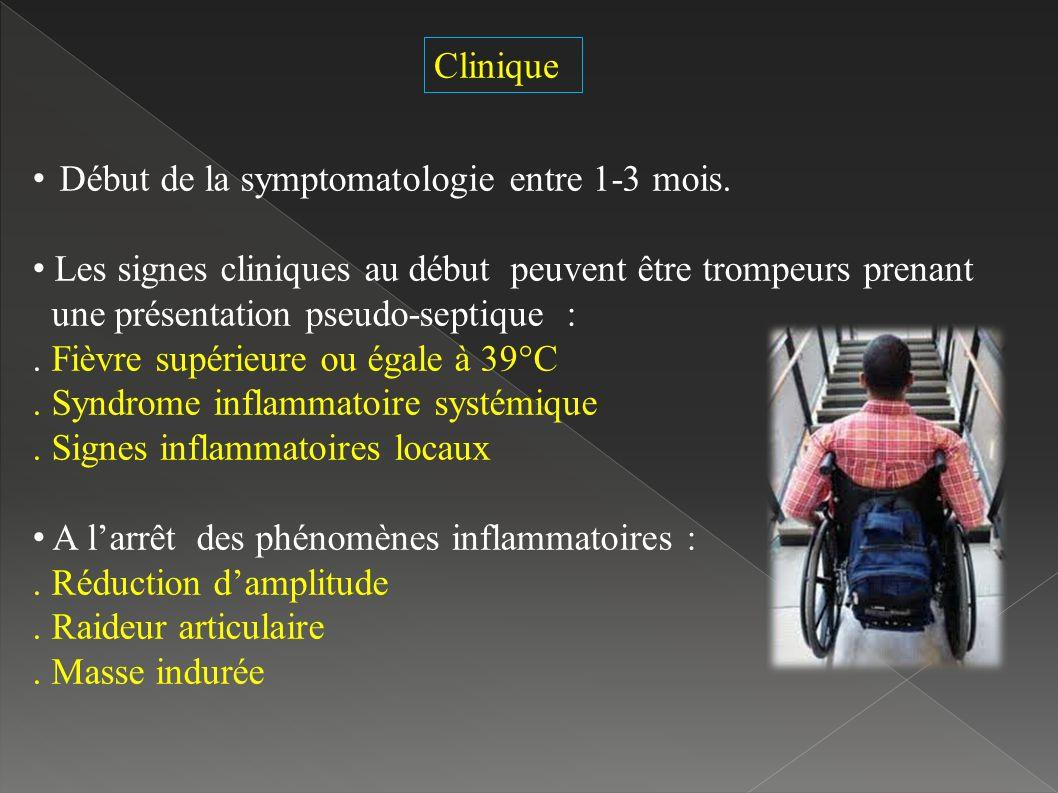 Début de la symptomatologie entre 1-3 mois.