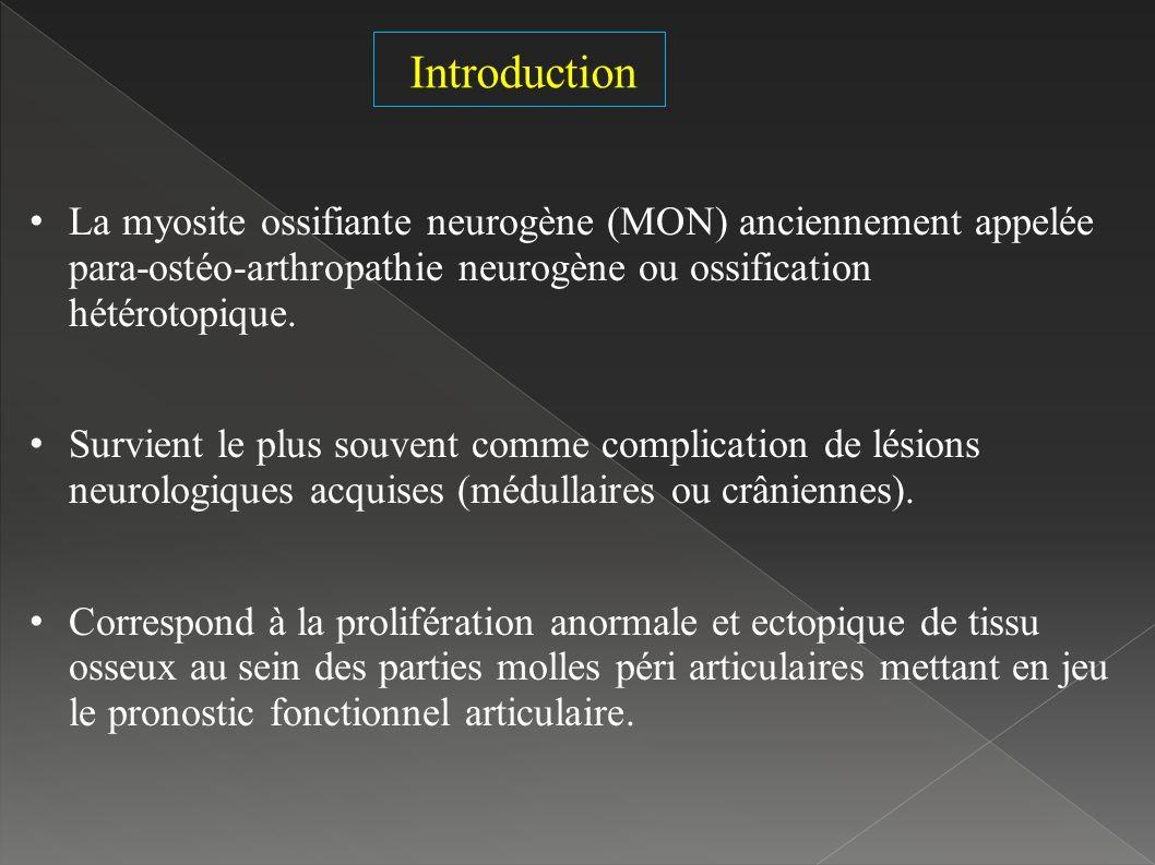 La myosite ossifiante neurogène (MON) anciennement appelée para-ostéo-arthropathie neurogène ou ossification hétérotopique.