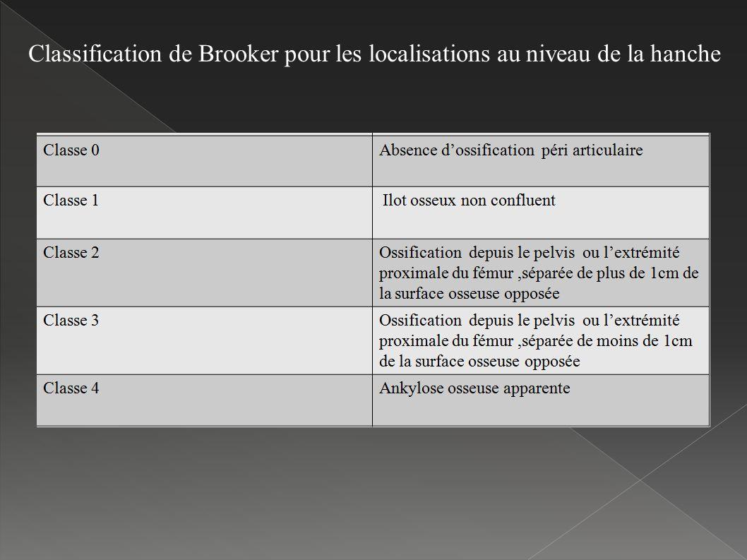 Classification de Brooker pour les localisations au niveau de la hanche