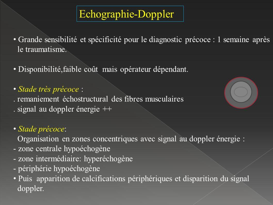 Echographie-Doppler Grande sensibilité et spécificité pour le diagnostic précoce : 1 semaine après le traumatisme.