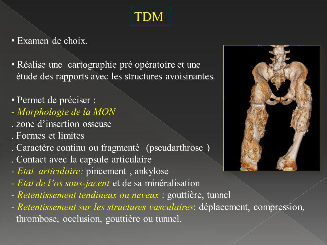 TDM Examen de choix.