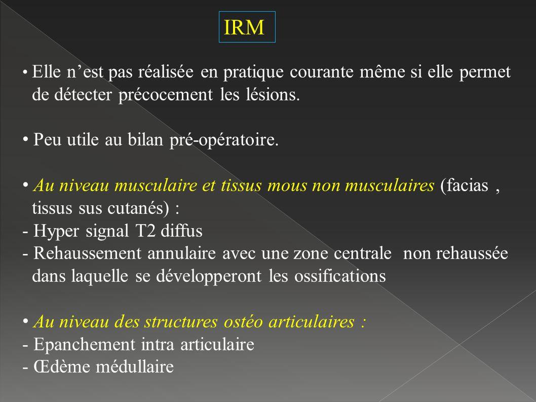 IRM Elle nest pas réalisée en pratique courante même si elle permet de détecter précocement les lésions.