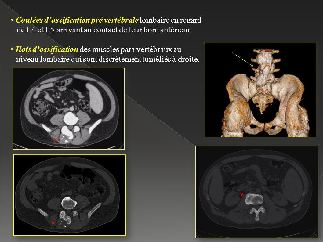 Coulées dossification pré vertébrale lombaire en regard de L4 et L5 arrivant au contact de leur bord antérieur.