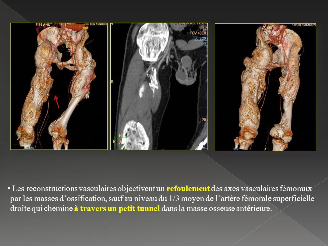 Les reconstructions vasculaires objectivent un refoulement des axes vasculaires fémoraux par les masses dossification, sauf au niveau du 1/3 moyen de lartère fémorale superficielle droite qui chemine à travers un petit tunnel dans la masse osseuse antérieure.