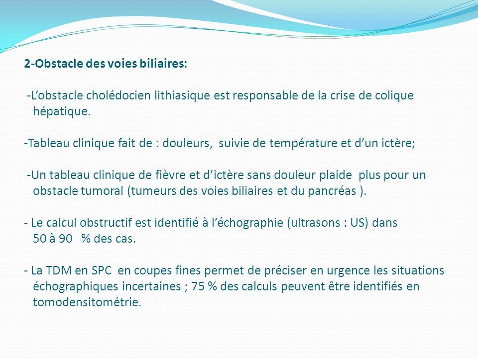 2-Obstacle des voies biliaires: -Lobstacle cholédocien lithiasique est responsable de la crise de colique hépatique. -Tableau clinique fait de : doule