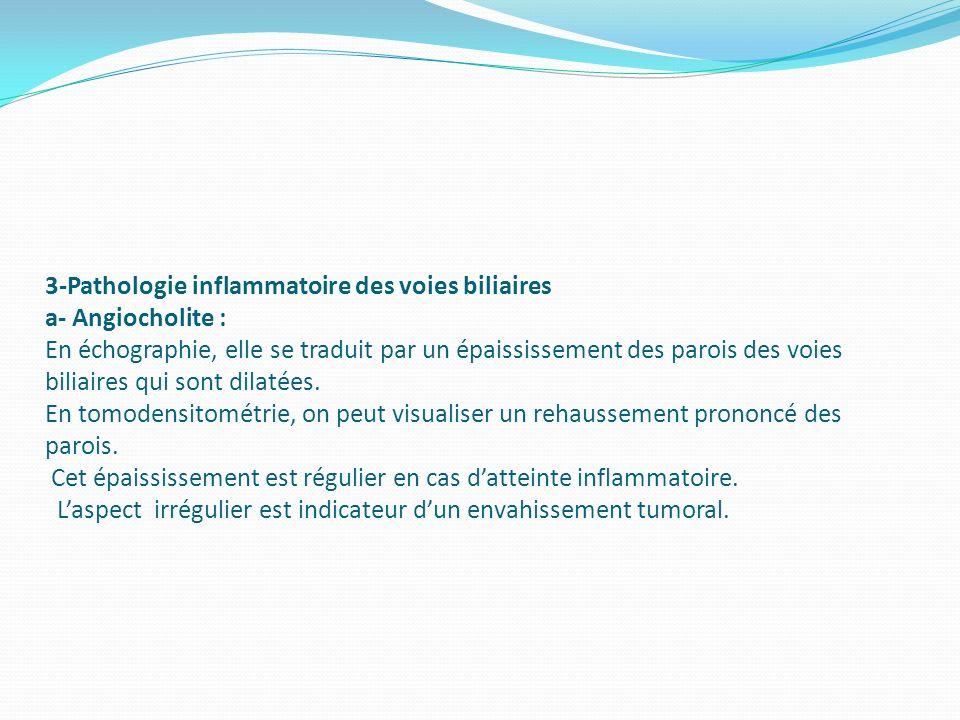 3-Pathologie inflammatoire des voies biliaires a- Angiocholite : En échographie, elle se traduit par un épaississement des parois des voies biliaires