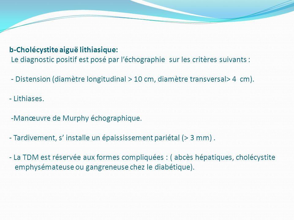 b-Cholécystite aiguë lithiasique: Le diagnostic positif est posé par léchographie sur les critères suivants : - Distension (diamètre longitudinal > 10