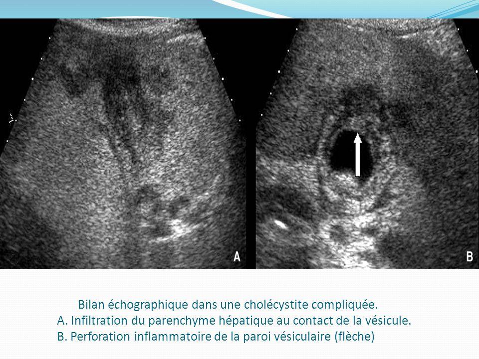 Bilan échographique dans une cholécystite compliquée. A. Infiltration du parenchyme hépatique au contact de la vésicule. B. Perforation inflammatoire