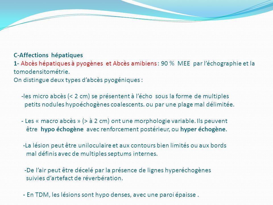 C-Affections hépatiques 1- Abcès hépatiques à pyogènes et Abcès amibiens : 90 % MEE par léchographie et la tomodensitométrie. On distingue deux types