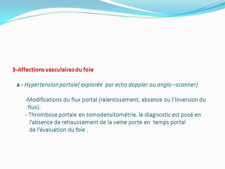 3-Affections vasculaires du foie a - Hypertension portale( explorée par echo doppler ou angio –scanner) -Modifications du flux portal (ralentissement,