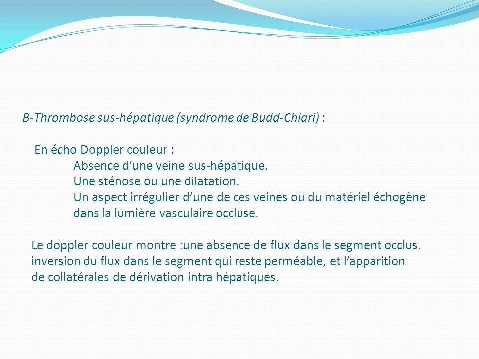 B-Thrombose sus-hépatique (syndrome de Budd-Chiari) : En écho Doppler couleur : Absence dune veine sus-hépatique. Une sténose ou une dilatation. Un as