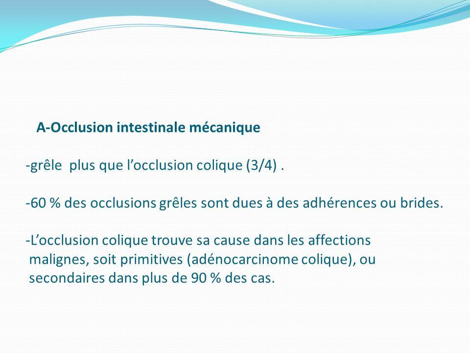 A-Occlusion intestinale mécanique -grêle plus que locclusion colique (3/4). -60 % des occlusions grêles sont dues à des adhérences ou brides. -Locclus