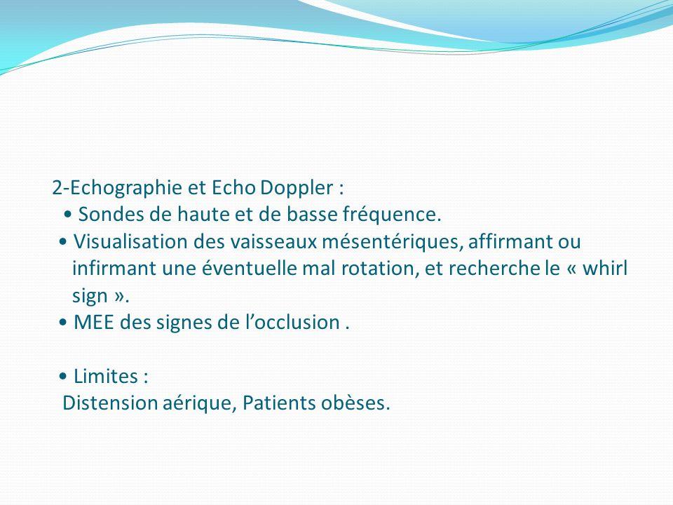 2-Echographie et Echo Doppler : Sondes de haute et de basse fréquence. Visualisation des vaisseaux mésentériques, affirmant ou infirmant une éventuell