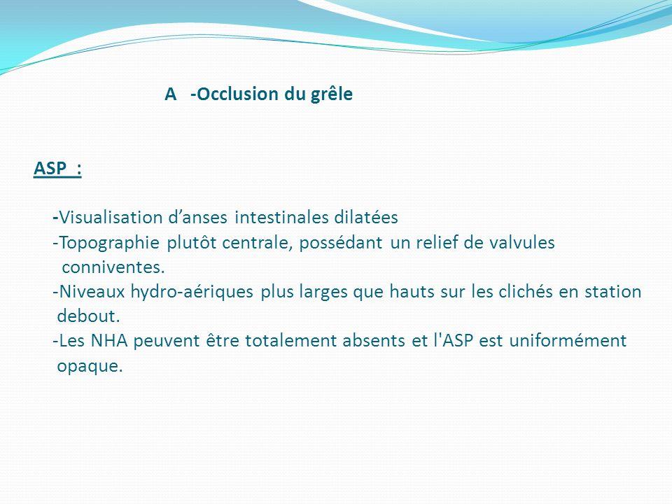 A -Occlusion du grêle ASP : -Visualisation danses intestinales dilatées -Topographie plutôt centrale, possédant un relief de valvules conniventes. -Ni