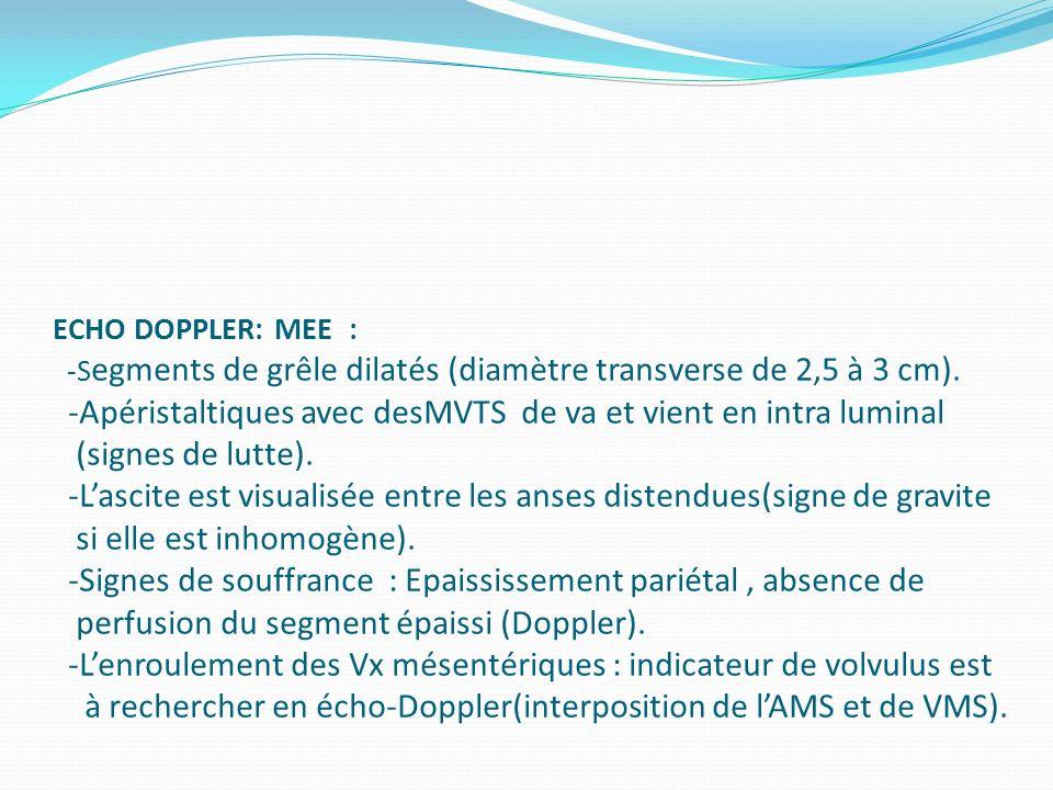ECHO DOPPLER: MEE : -S egments de grêle dilatés (diamètre transverse de 2,5 à 3 cm). -Apéristaltiques avec desMVTS de va et vient en intra luminal (si