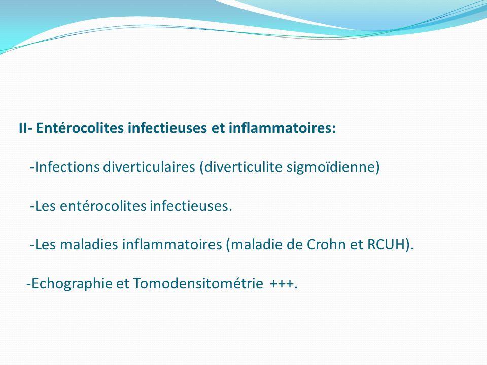 II- Entérocolites infectieuses et inflammatoires: -Infections diverticulaires (diverticulite sigmoïdienne) -Les entérocolites infectieuses. -Les malad