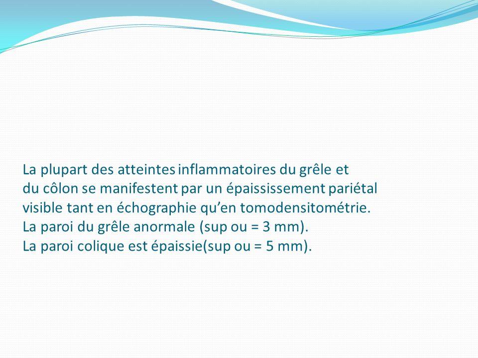 La plupart des atteintes inflammatoires du grêle et du côlon se manifestent par un épaississement pariétal visible tant en échographie quen tomodensit