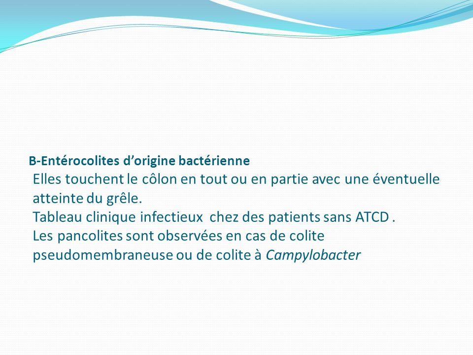 B-Entérocolites dorigine bactérienne Elles touchent le côlon en tout ou en partie avec une éventuelle atteinte du grêle. Tableau clinique infectieux c
