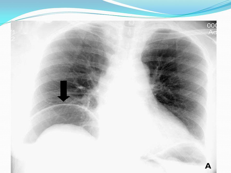 Niveau transitionnel causé par une virole tumorale