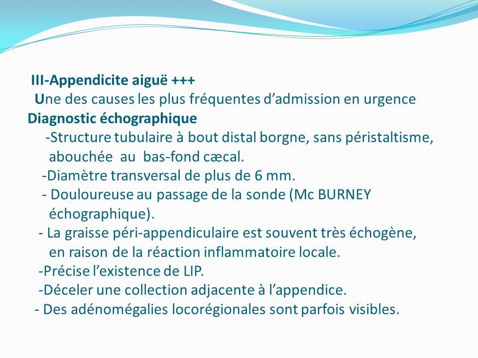III-Appendicite aiguë +++ Une des causes les plus fréquentes dadmission en urgence Diagnostic échographique -Structure tubulaire à bout distal borgne,