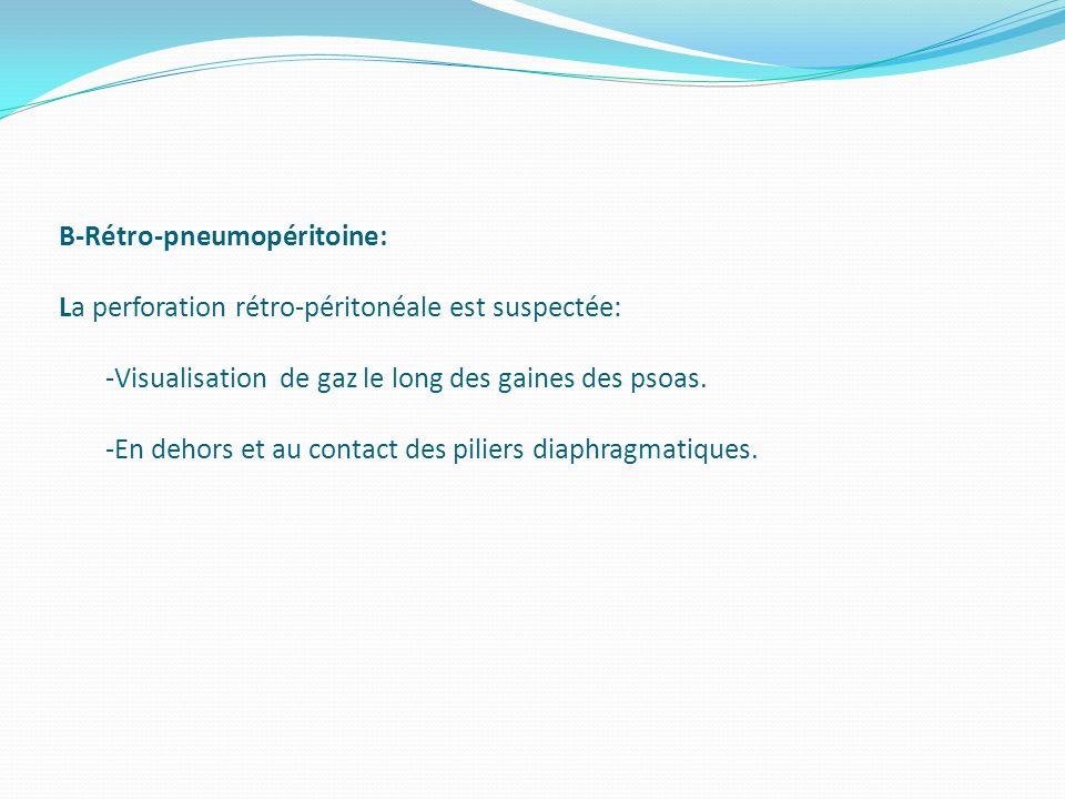 B-Rétro-pneumopéritoine: La perforation rétro-péritonéale est suspectée: -Visualisation de gaz le long des gaines des psoas. -En dehors et au contact