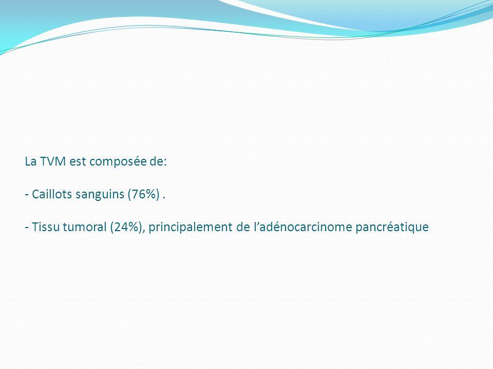 La TVM est composée de: - Caillots sanguins (76%). - Tissu tumoral (24%), principalement de ladénocarcinome pancréatique