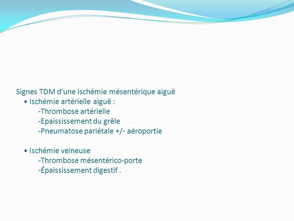 Signes TDM dune ischémie mésentérique aiguë Ischémie artérielle aiguë : -Thrombose artérielle -Epaississement du grêle -Pneumatose pariétale +/- aérop