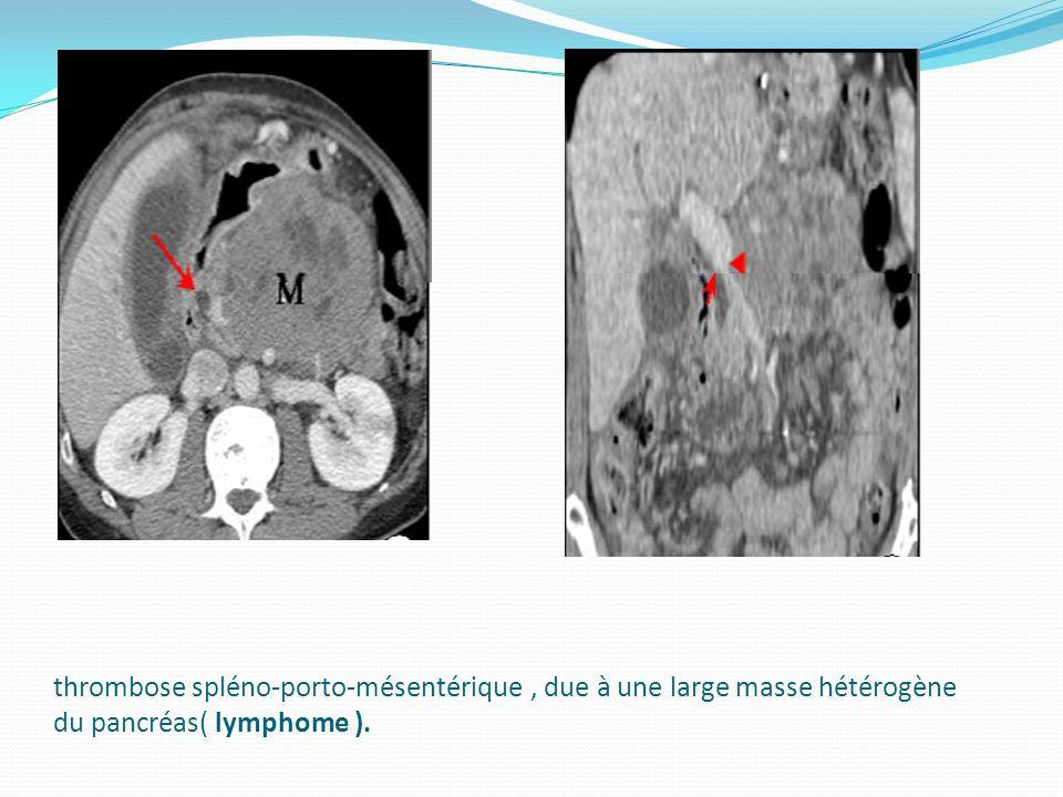 thrombose spléno-porto-mésentérique, due à une large masse hétérogène du pancréas( lymphome ).