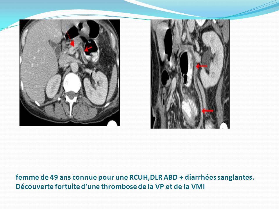 femme de 49 ans connue pour une RCUH,DLR ABD + diarrhées sanglantes. Découverte fortuite dune thrombose de la VP et de la VMI