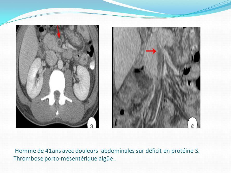 Homme de 41ans avec douleurs abdominales sur déficit en protéine S. Thrombose porto-mésentérique aigüe.