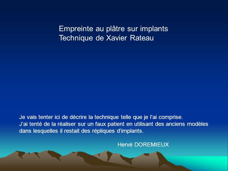 Empreinte au plâtre sur implants Technique de Xavier Rateau Je vais tenter ici de décrire la technique telle que je lai comprise. Jai tenté de la réal