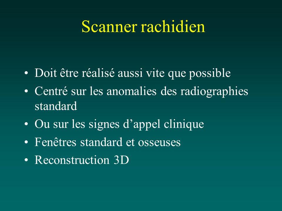 Scanner rachidien Doit être réalisé aussi vite que possible Centré sur les anomalies des radiographies standard Ou sur les signes dappel clinique Fenê