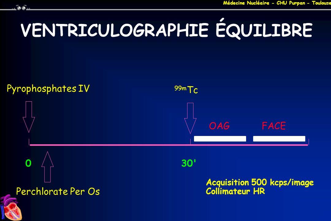 Médecine Nucléaire - CHU Purpan - Toulouse VENTRICULOGRAPHIE ÉQUILIBRE 0 30' OAGFACE Pyrophosphates IV 99m Tc Perchlorate Per Os Acquisition 500 kcps/