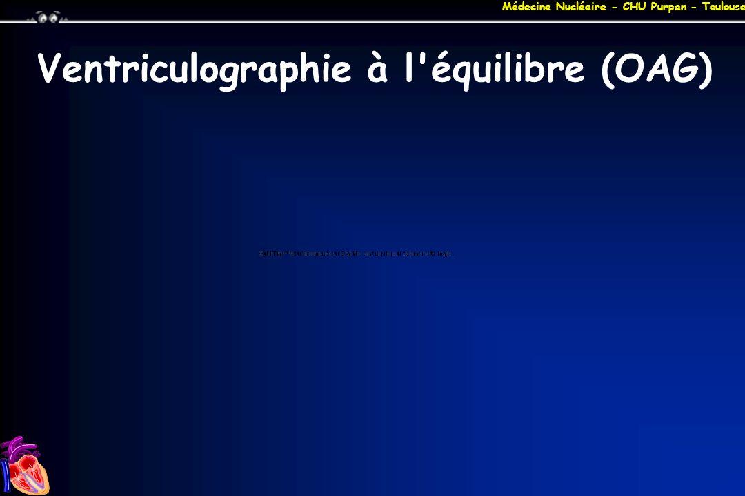 Médecine Nucléaire - CHU Purpan - Toulouse Ventriculographie à l'équilibre (OAG)