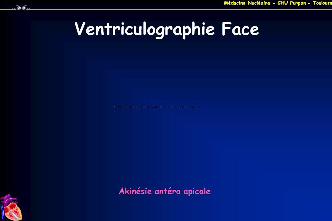 Médecine Nucléaire - CHU Purpan - Toulouse Ventriculographie Face Akinésie antéro apicale