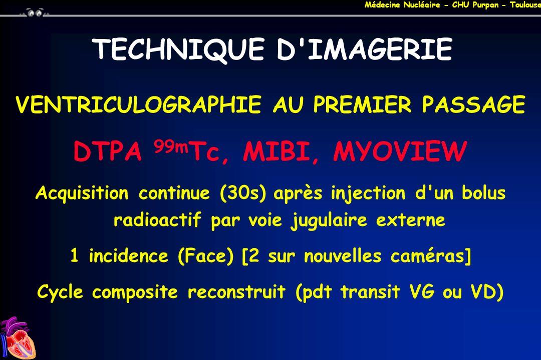 Médecine Nucléaire - CHU Purpan - Toulouse TECHNIQUE D'IMAGERIE VENTRICULOGRAPHIE AU PREMIER PASSAGE DTPA 99m Tc, MIBI, MYOVIEW Acquisition continue (