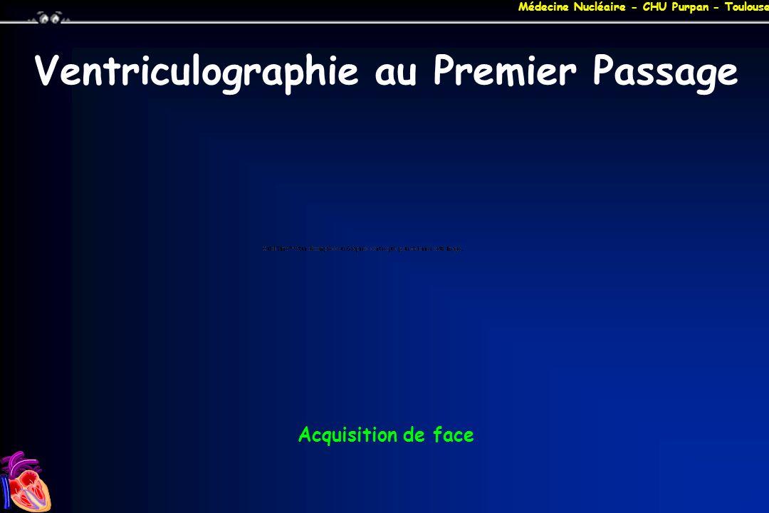 Médecine Nucléaire - CHU Purpan - Toulouse Ventriculographie au Premier Passage Acquisition de face